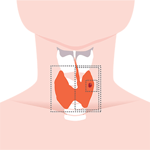 chirurgia tiroide