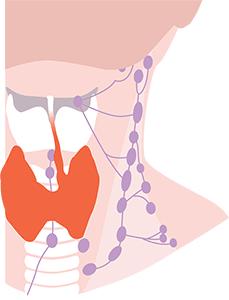 linfonodi tiroide